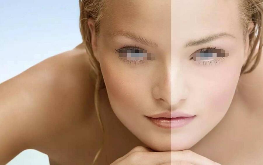 Why Do I Dream That My Skin Turns White?-Dreams Interpretation
