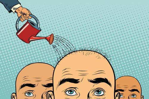 Top 15 Bald Dreams Interpretation-Dream Meaning And Symbol
