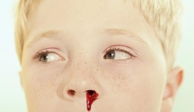Why Do I Dream Of A Child With Nosebleed?-Dreams Interpretation Online
